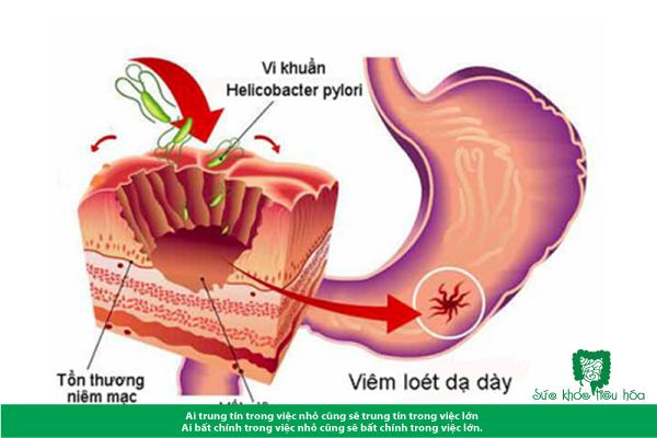 Men vi sinh giúp ngăn ngừa vi khuẩn H. PYLORI
